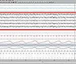 EEG Phase 1 (image Wikipédia)