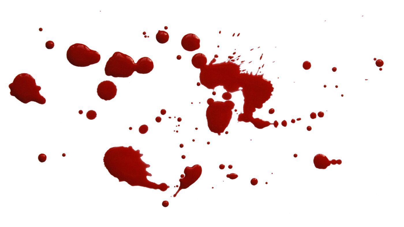 bilan sanguin complet mst coucou tu veux voir ma